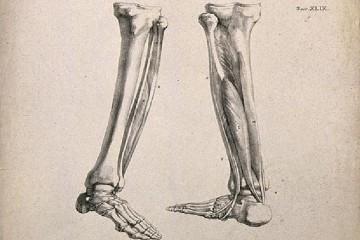 В костях ног найден сенсор лишнего веса