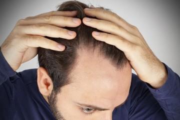 Новый препарат против выпадения мужских волос